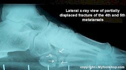 metatarsal_stress_fracture