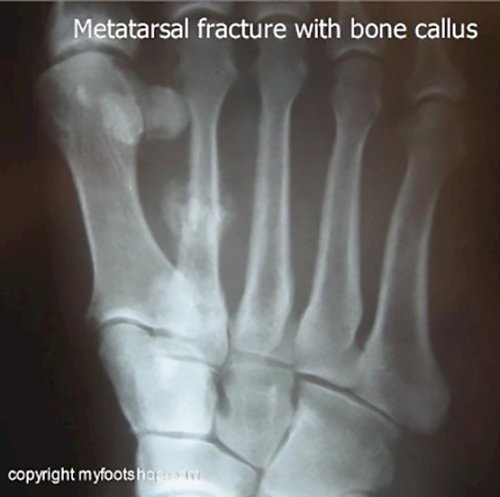 stress fractures of the foot | causes and treatment options, Muscles