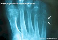 diabetic_osteomyelitis_of_the_foot
