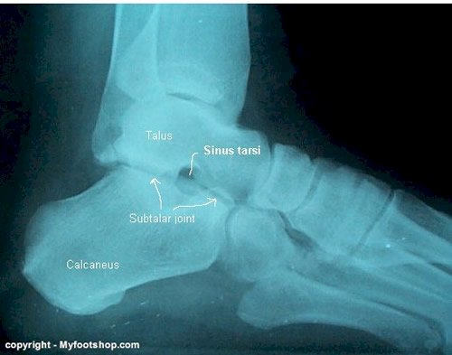 redness foot