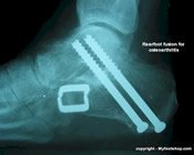 triple_arthrodesis_x-ray