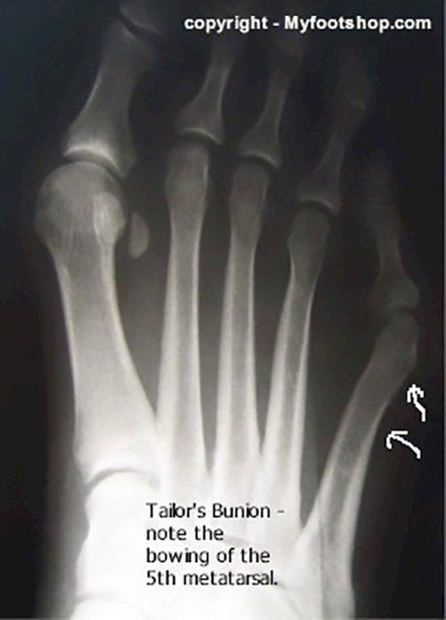 Tailor s bunion x-rayXray Foot Bunion