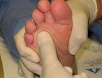Neuroma Of The Foot Natural Treatment