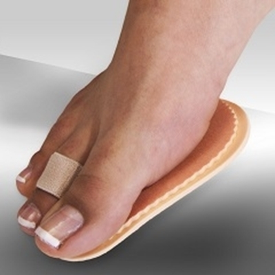 Bunion and Overlapping Second Toe