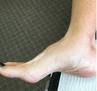 Three signs that may indicate you have osteoarthritis in your foot and ankle.