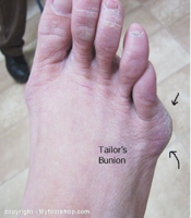 Tailor's Bunions | What are the pathomechanics of a tailor's bunion?