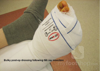 Wounds and wound prevention in the feet
