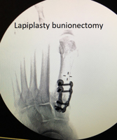 Lapidus Bunionectomy – tips to return to early weight bearing