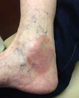 Chronic Lower Extremity Cellulitis - Treatment Options