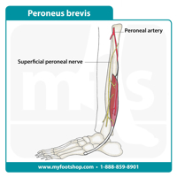 Foot Drop - injury to the common peroneal nerve