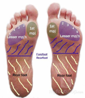Metatarsal Pads – which one is best for my foot pain?