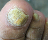 Treatment of onychomycosis with Lamisil – how can I optimize treatment?