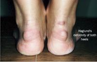Haglund's Deformity | Treatment options