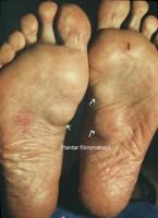 Plantar Fibromatosis | Treatment Options