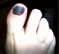 Runner's Nail | How do I treat it?