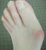 Bunion Regulators - What are they and how do they work?