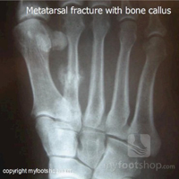 How do I treat a metatarsal stress fracture?