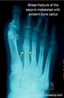 Metatarsal Stress Fractures | Treatment with a Spring Plate.