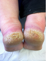 What causes heel fissures?