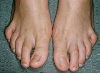 Hammer Toes - Pads for soft corns caused by hammer toes.