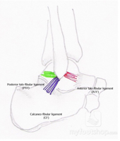Broström Lateral Ankle Stabilization