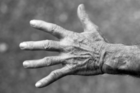 Does methotrexate influence wound healing?