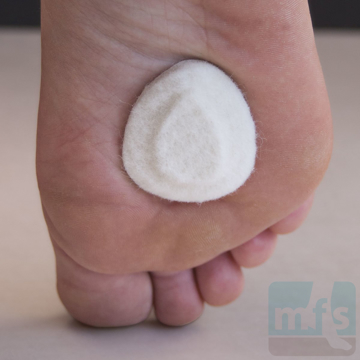 Picture of Neuroma Pads - Mini Felt