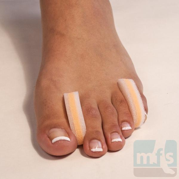 Picture of 3-Layer Foam Toe Separators