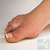 Picture of Metatarsal Cushion - Gel
