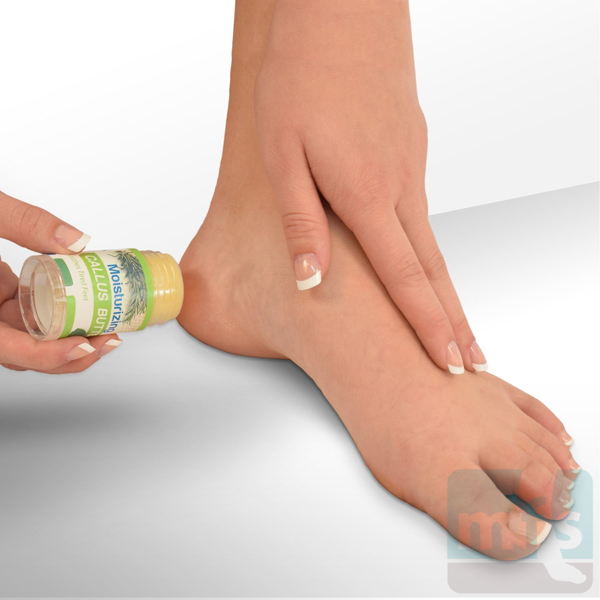 Picture of Natural Moisturizing Callus Butter