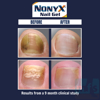 Nonyx® before and after 2