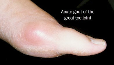 Gout Of The Great Toe Joint Following Implant Surgery To Correct Gouty Arthritis Myfootshop Com