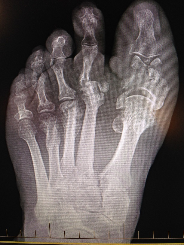 Brodsky stage 5 Charcot arthropathy