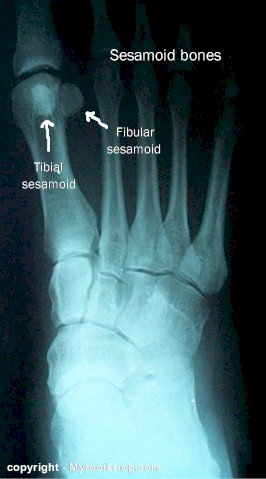 X-ray foot sesamoid bones